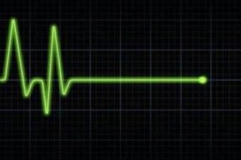 ekg-heart-flatline