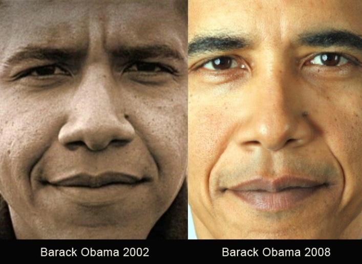 Obama Nose Job