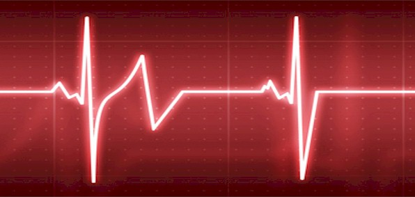 heartbeat_scan