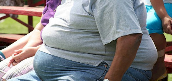 Obesity fuelling vastly higher COVID death toll