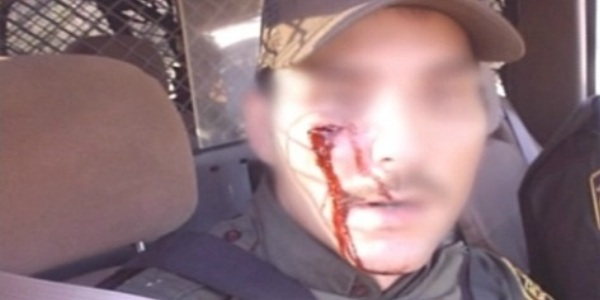 U.S. Border Agent wounded by rock-throwing illegal immigrants, PHOTO: Homeland Security Today