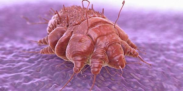 Scabies mites irritate the skin and can be passed on through clothing, bedding and towels