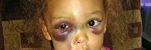 avalynn-kindergarten-injured-600