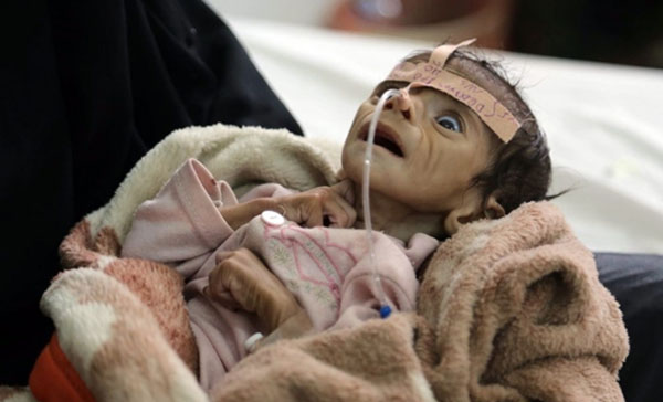 Saudi Arabia's war on impoverished Yemen has brought world condemnation as famine, blood and death are the order of the day, instead of glory, honor and security for Saudi Arabia's elites and ordinary, everyday citizens. Saudi Arabia's energy wealth enables its foreign adventurism