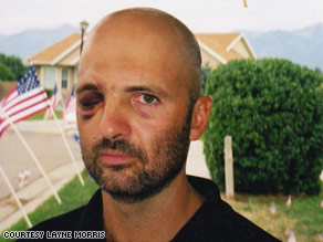 Sgt. Layne Morris after he lost his right eye.