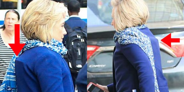 is hillary hiding a back brace
