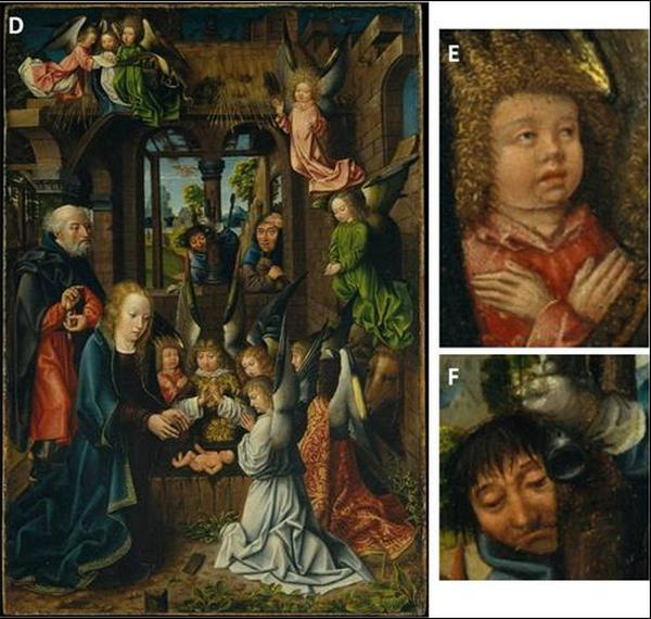 The Adoration of the Christ Child – with details of Down featured individuals. By a follower of Jan Joest of Kalkar – German Netherlandish (ca.1515) Details by Andrew Levitas and Cheryl Reid.